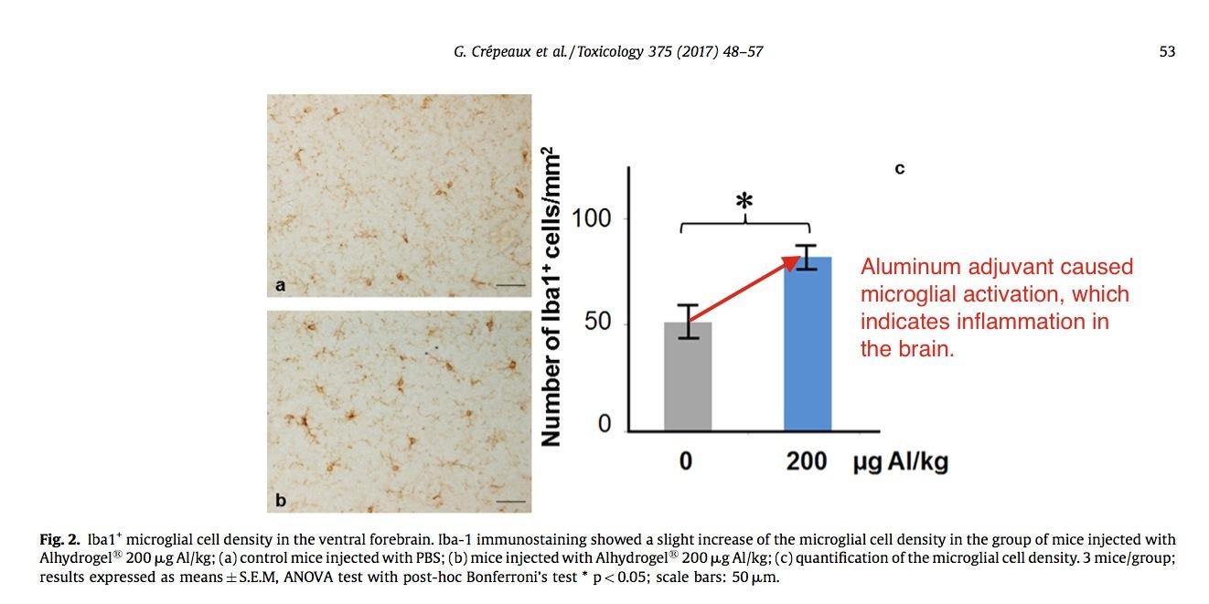 adiuvante-alluminio-causa-microglia