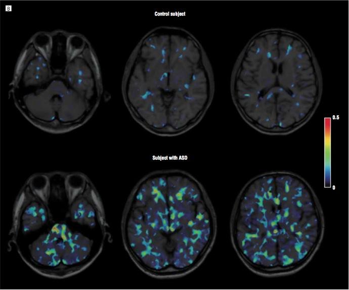 Autism brain scan